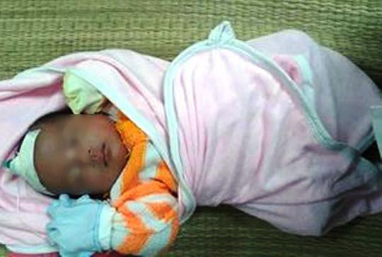 Sưởi than, bé 36 ngày tuổi ngừng hô hấp, tuần hoàn - 1