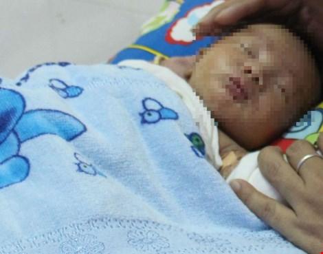 Bé sơ sinh mắc dị tật hiếm gặp ở ruột - 1