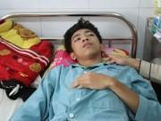 Giáo dục - du học - Học sinh lớp 9 bị nhóm bạn đánh chấn thương sọ não