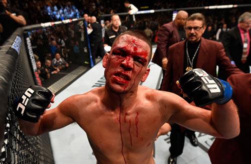 """UFC, McGregor – Diaz: """"Gã điên"""" choáng váng - 6"""