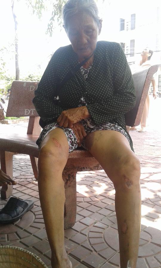 Kéo cổ áo kẻ cướp vé số, cụ bà bị chấn thương nặng - 2