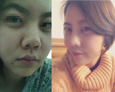 """Khám phá """"thủ phủ thẩm mỹ"""" thay đổi diện mạo của người Hàn - 4"""
