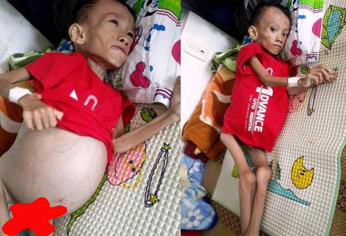 Xót thương bé trai 6 tuổi đau đớn vật vã từng đêm - 1
