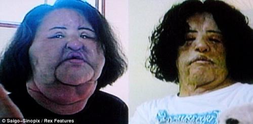 Người đẹp hóa dị nhân vì phẫu thuật, tiêm dầu ăn vào da - 2