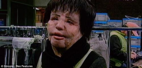 Người đẹp hóa dị nhân vì phẫu thuật, tiêm dầu ăn vào da - 3