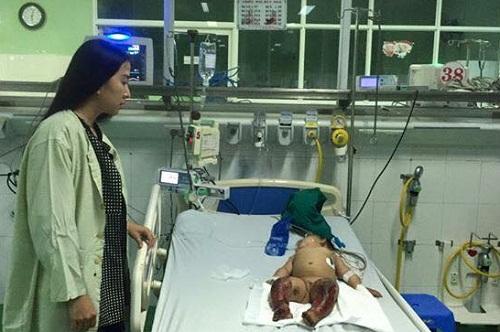Xót xa bé 8 tháng tuổi bị hoại tử chân vì bất cẩn - 1