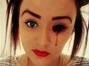 Chuyện lạ - Thiếu nữ bị chảy máu mắt và tai 5 lần/ngày