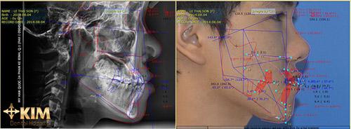 """Niềng răng không mắc cài invisalign 3D: """"hô biến"""" hàm răng kém duyên - 3"""