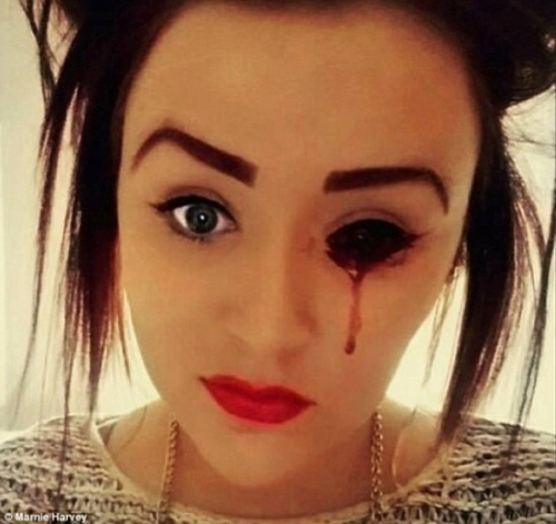 Bí ẩn căn bệnh khiến thiếu nữ chảy máu mắt mỗi ngày - 1