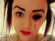 Sức khỏe đời sống - Bí ẩn căn bệnh khiến thiếu nữ chảy máu mắt mỗi ngày