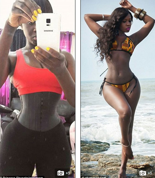 Nữ diễn viên có vòng mông 1.1 m hỏng thận vì corset - 1