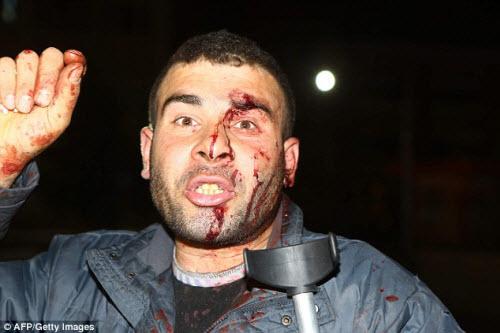 Hiện trường vụ đánh bom thảm khốc ở Thổ Nhĩ Kỳ - 5