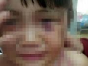 An ninh Xã hội - Bé gái 3 tuổi bị cha dượng đánh dã man để 'trả thù'!