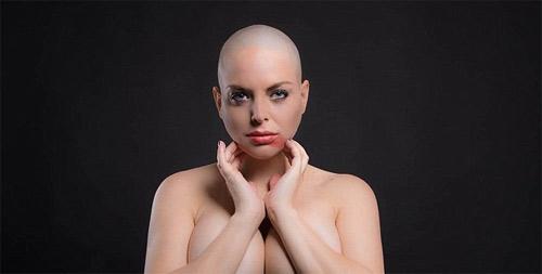 """Người mẫu """"siêu vòng 3"""" bị ung thư vẫn nghiện thẩm mỹ - 3"""