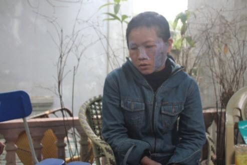 Nghệ An: Chồng tra tấn vợ dã man - 1