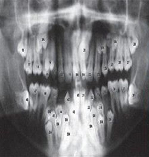 Sốc: Bé trai 9 tuổi  mọc gần 300 chiếc răng trong miệng - 5
