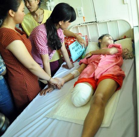 Nữ sinh bị cưa chân bật khóc khi gặp Bộ trưởng Y tế - 2