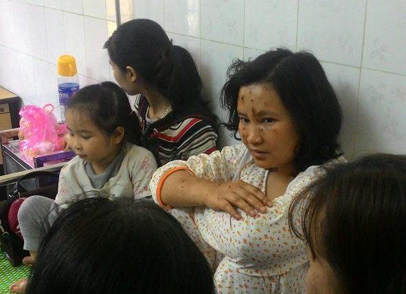 Nạn nhân kể lại giây phút nổ kinh hoàng ở KĐT Văn Phú - 2