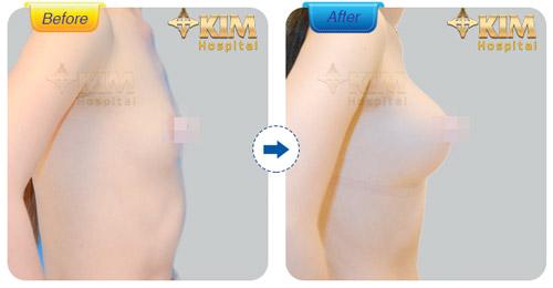 20 cơ hội phẫu thuật thẩm mỹ miễn phí 100% từ KIM Hospital - 4
