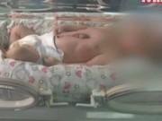 Sức khỏe đời sống - Kỳ lạ cậu bé sơ sinh có trái tim nằm ngoài cơ thể