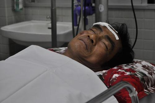 Ông Huỳnh Văn Nén bị TNGT: Đã có kết quả chụp CT - 1