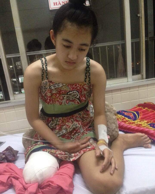 Công an làm việc với người nhà nữ sinh bị cưa chân - 1
