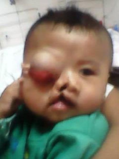 Xót xa khuôn mặt đa dị tật của bé trai 6 tháng tuổi - 1