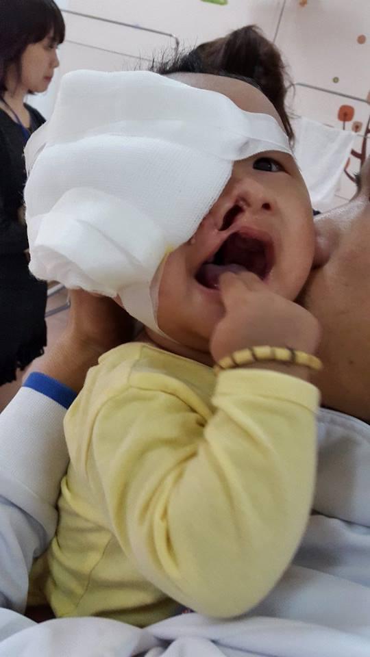 Xót xa khuôn mặt đa dị tật của bé trai 6 tháng tuổi - 2