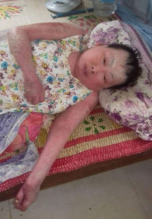 Nỗi đau đớn của cô giáo 10 năm chiến đấu với bệnh tật - 1