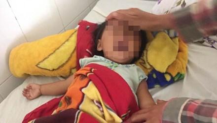 Bé 9 tháng tuổi bị bắn 8 viên đạn vào người - 1
