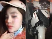 """Bạn trẻ - Cuộc sống - Ngán ngẩm cô gái bị tai nạn xe vẫn không quên """"tự sướng"""""""