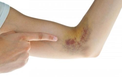 Cảnh báo những căn bệnh tiềm ẩn đằng sau vết bầm tím trên da - 3