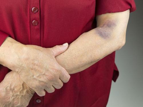 Cảnh báo những căn bệnh tiềm ẩn đằng sau vết bầm tím trên da - 2