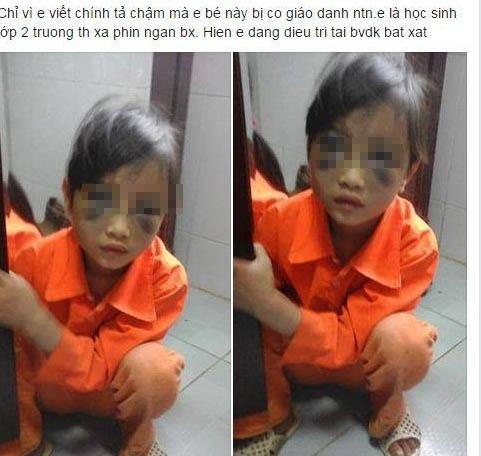 Bé gái lớp 1 bị cô giáo đánh tím mặt ở Lào Cai - 1