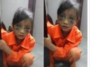 An ninh Xã hội - Bé gái lớp 1 bị cô giáo đánh tím mặt ở Lào Cai