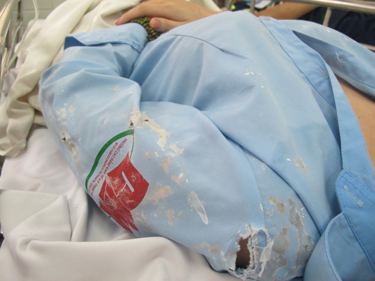 Bắt được một đối tượng tạt axit nữ sinh viên ở Sài Gòn - 2