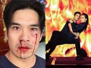 Diễn viên Việt bị đánh chảy máu trên đường phố Úc