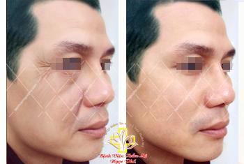 Bệnh viện Ngọc Phú ứng dụng thành công phương pháp căng da không đau - 4