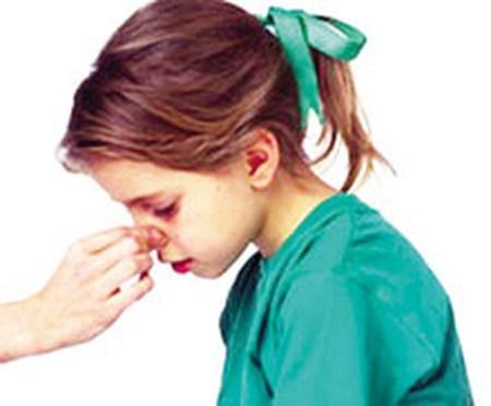 Bệnh ung thư nào có triệu chứng chảy máu mũi, chảy máu chân răng? - 1
