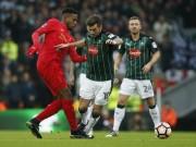 Bóng đá - Liverpool - Plymouth: Chống cự kiên cường