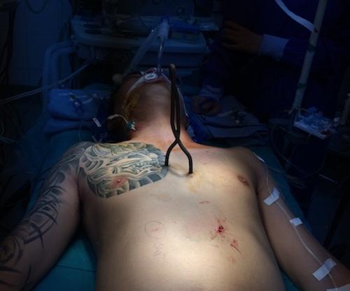 Hy hữu: Thanh sắt xiên cá đâm thủng 6 lỗ trên tim, vẫn sống - 1