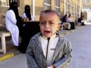 Lo ngại bùng phát bệnh bại liệt do thiếu vắc-xin