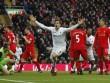 Liverpool bại trận: Thủ thế này đừng mơ vô địch