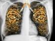 Mỗi năm người Việt Nam bỏ 22.000 tỉ đồng mua thuốc lá