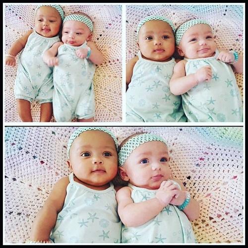 Hai chị em song sinh khác màu da, màu mắt hiếm gặp - 2
