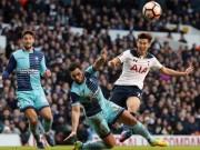 Bóng đá - Tottenham - Wycombe: Giấc mơ sụp đổ phút 90+7