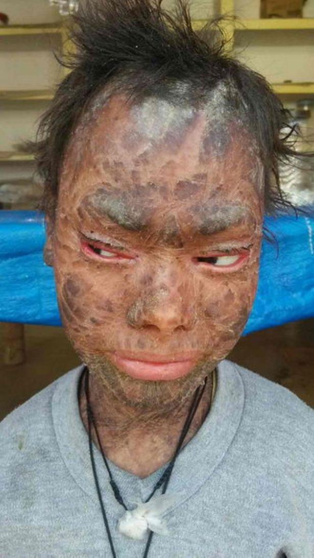 Cô gái mắc bệnh lạ, lột da hằng tháng như rắn - 5