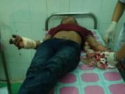 An ninh Xã hội - Đi thăm bác ruột, bị chém đứt gân tay trong đêm