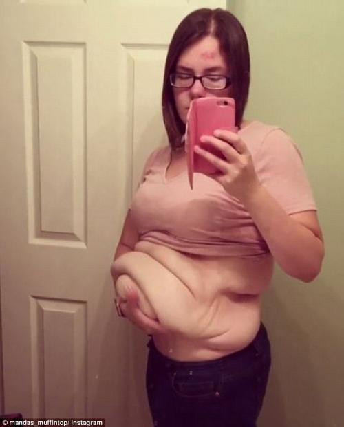 Choáng váng với cơ thể sau khi hút mỡ thừa của bà mẹ 9x - 4