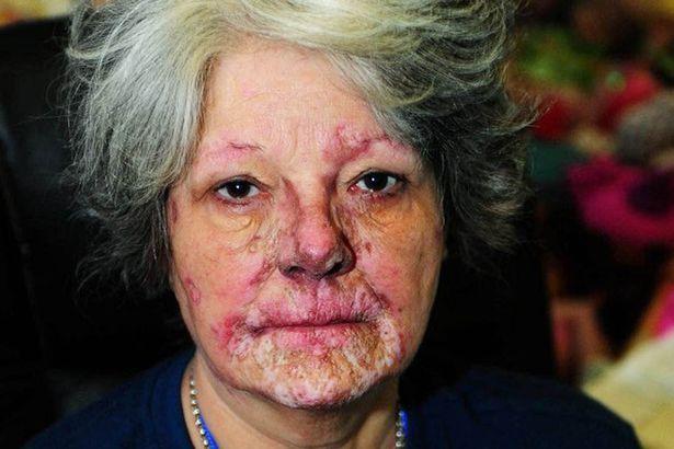 """Người phụ nữ 15 năm sống chung với bệnh """"mặt trời ăn da thịt"""" - 1"""